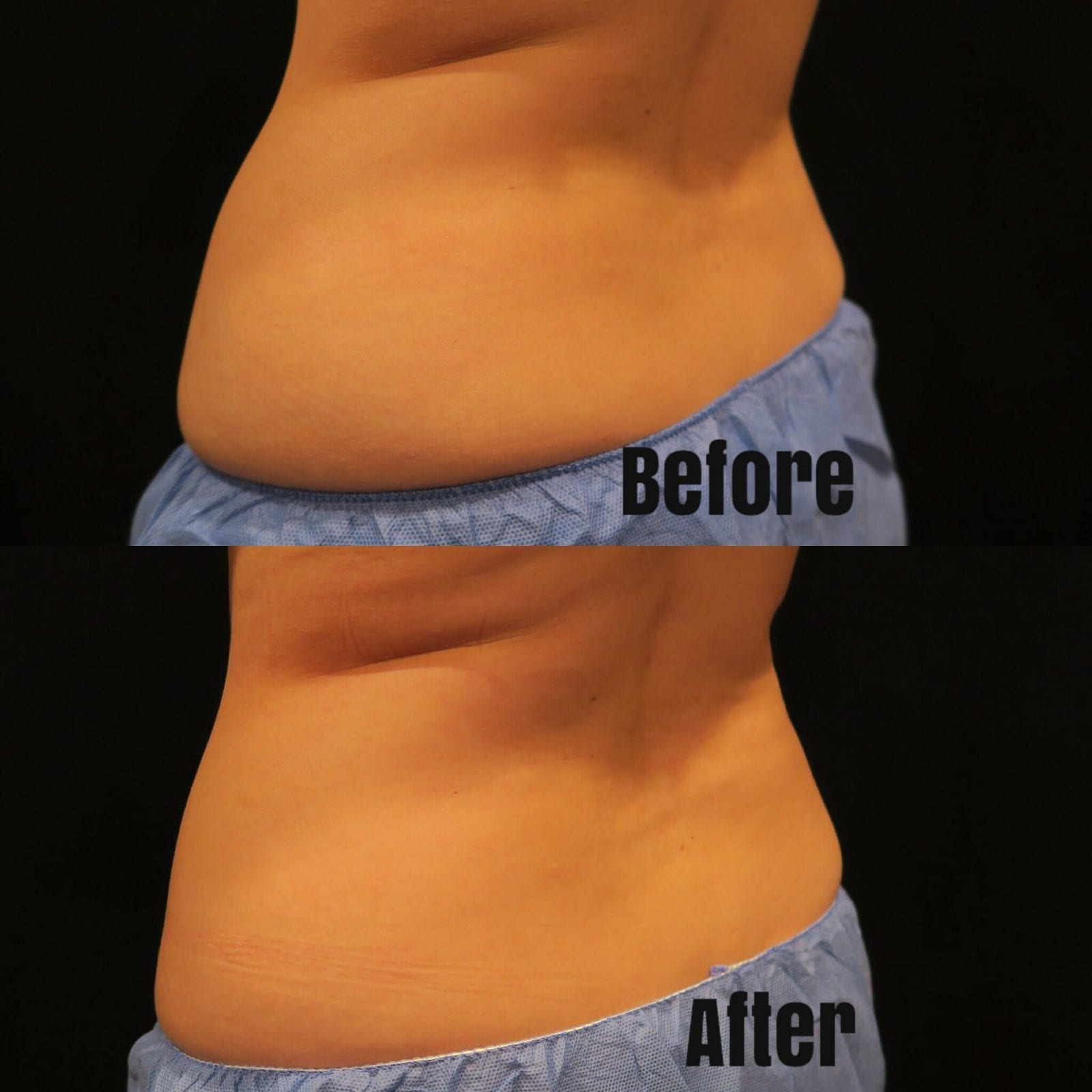 These are close-ups of the before and after one round of coolsculpting, on the left side of my love handles.