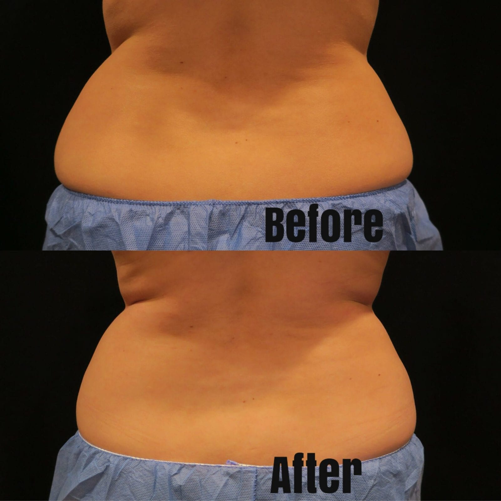 This is the before and after shot of my back love handle view.
