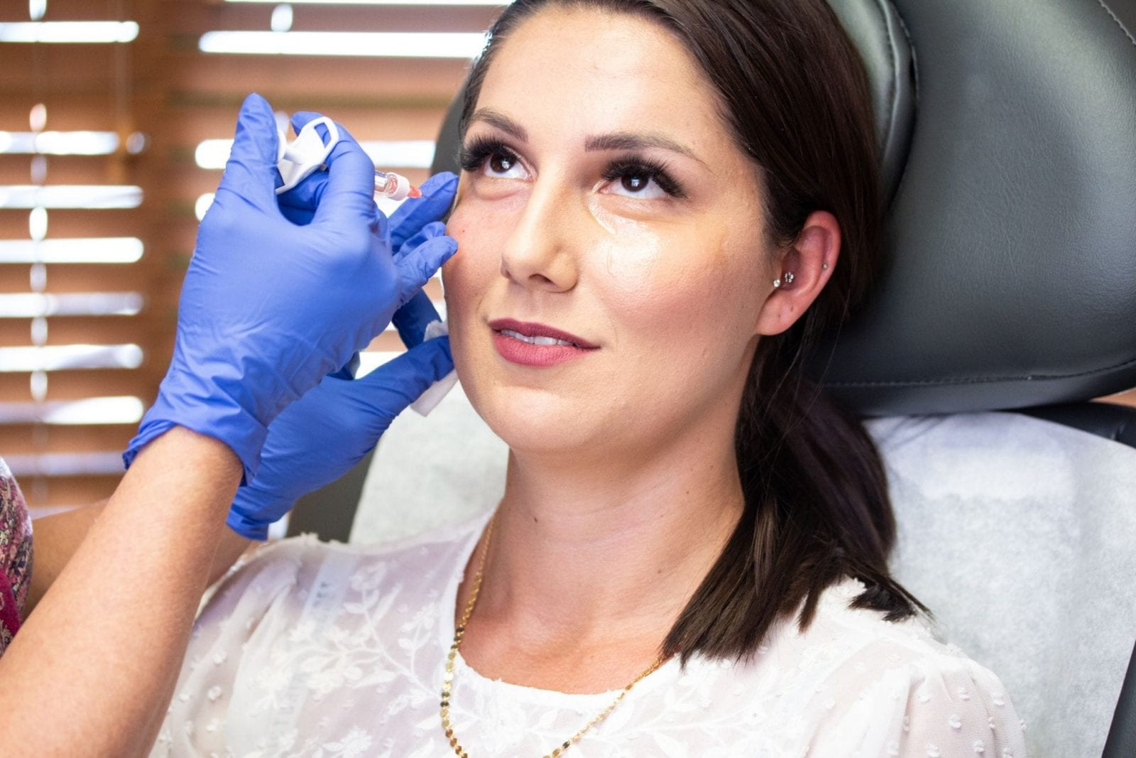 This is a great capture (bright lighting) with the hyaluronic acid filler in action.