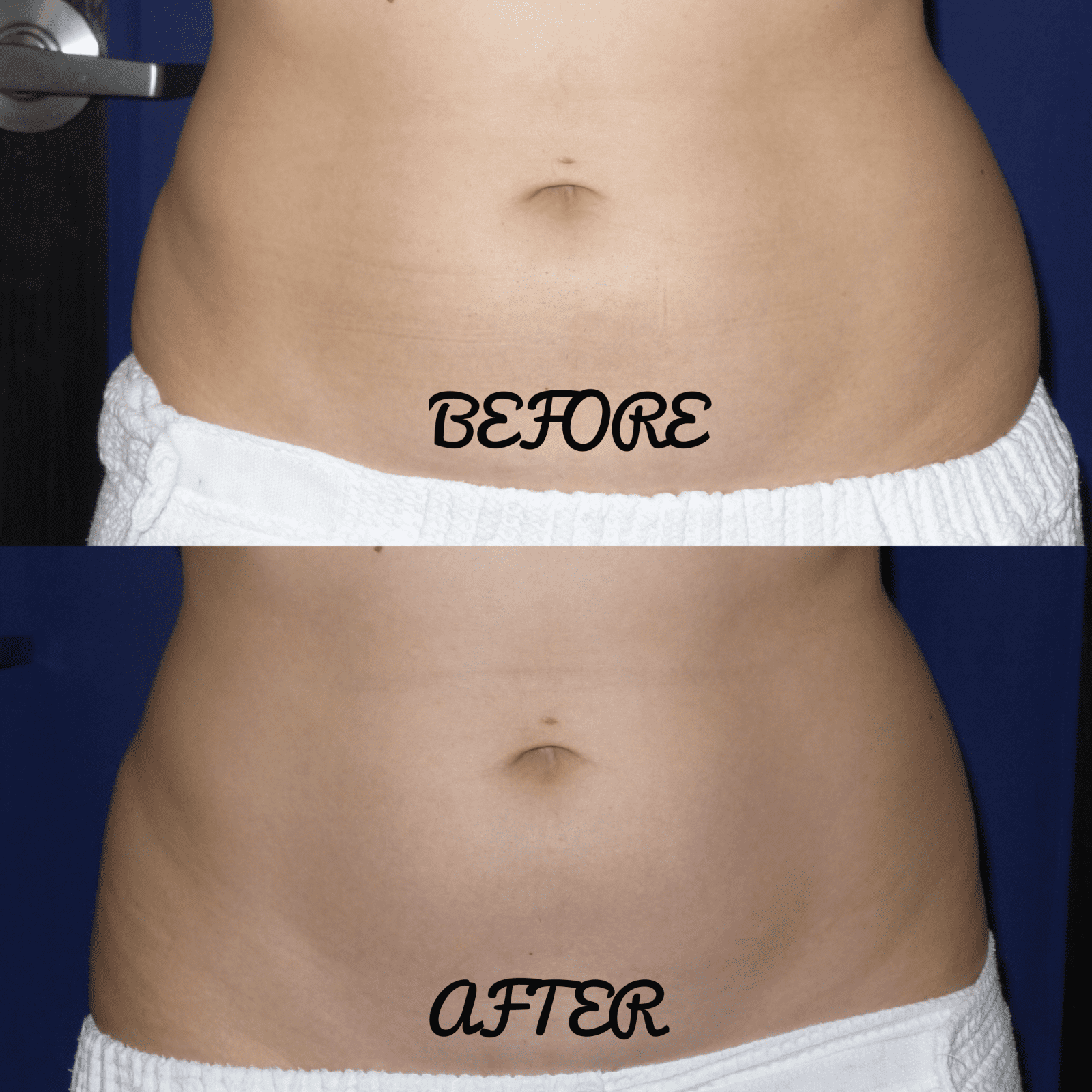 This is a before and after body contouring shot of the front view of my belly.